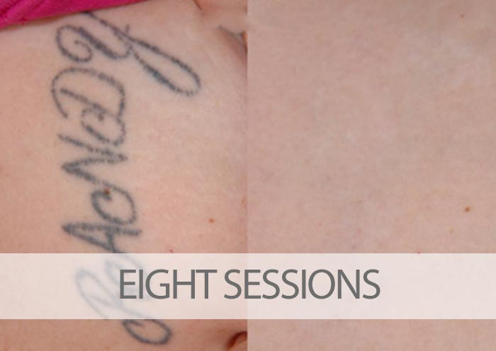 Before and after eight laser tattoo removal sessions