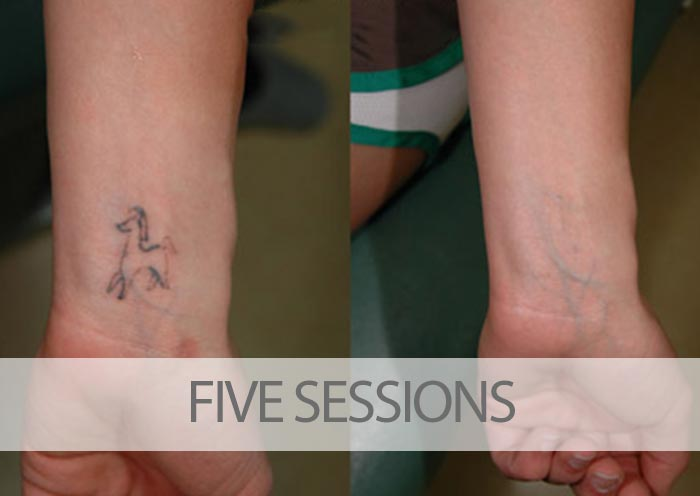Before and after five laser tattoo removal sessions