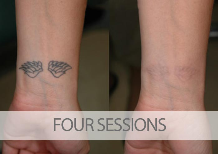 Before and after four laser tattoo removal sessions