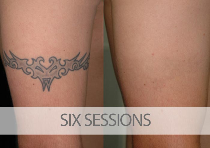 Before and after six laser tattoo removal sessions