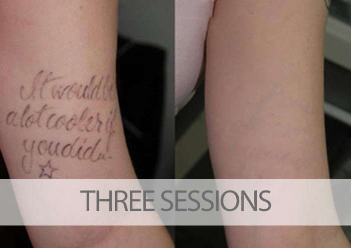 Before and after three laser tattoo removal sessions