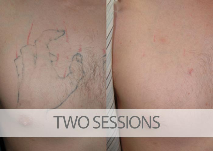Before and after two laser tattoo removal sessions