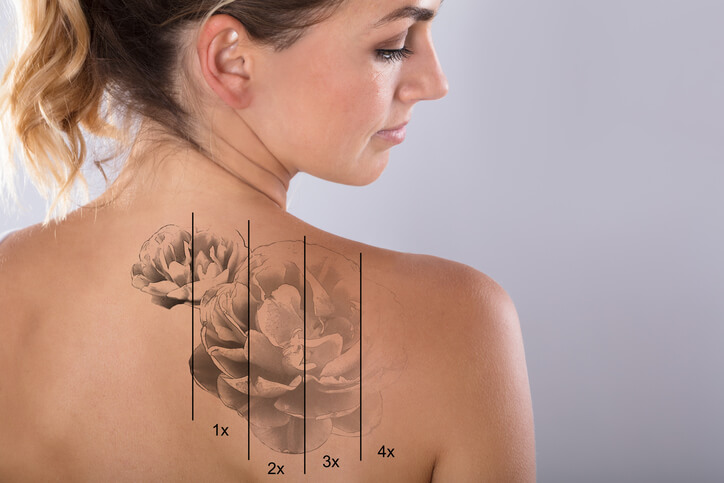 All You Need To Know About Colour Tattoo Removal