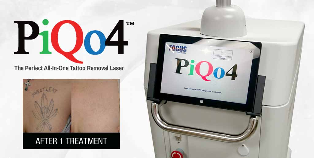 PiQo4 Laser tattoo removal machine with an example of one before and after treatment