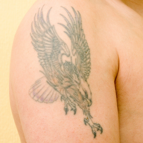 person with faded tattoo on shoulder