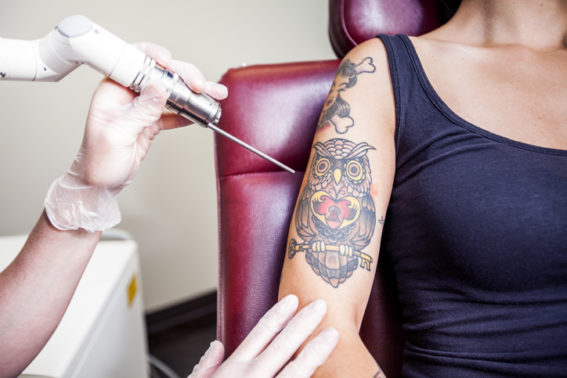 Laser Tattoo Removal session